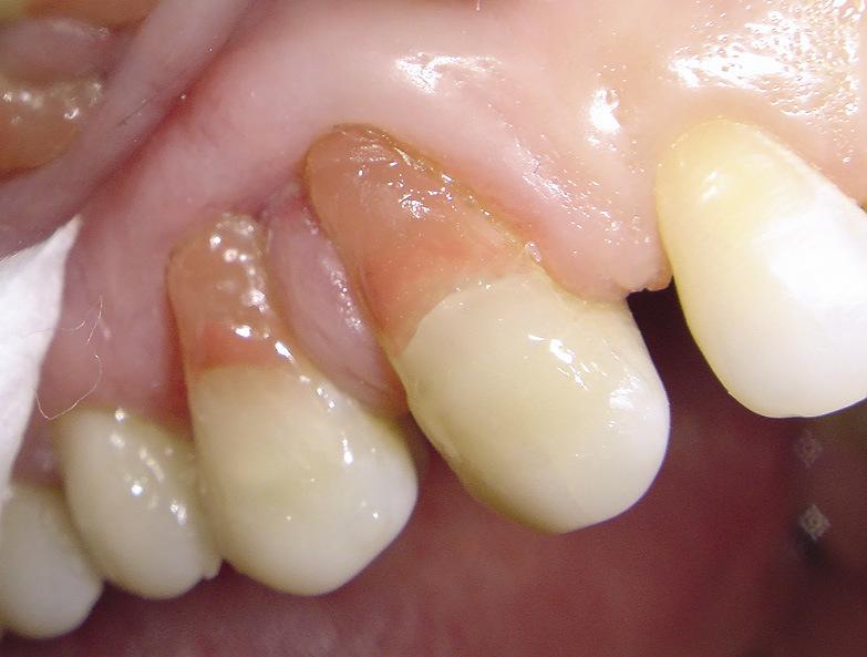 Рис. 18. Несоответствие формы купола десневого края реставраций 13 и 14 зубов рядом стоящим зубам.