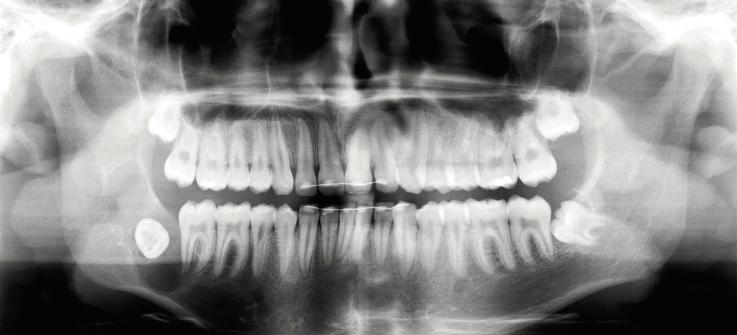 Рис. 1. Рентгенограмма до операции: очаг остеолиза в области угла нижней челюсти справа, многокамерный, с относительно четкими границами. Ретенированный дистопированный 48 зуб мудрости.