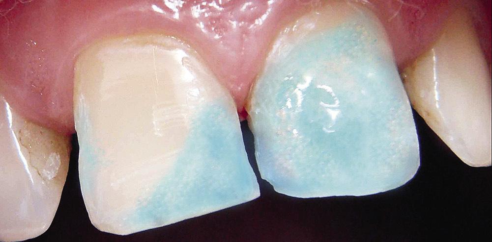 Рис. 19. Травление препарированных твердых тканей зубов.