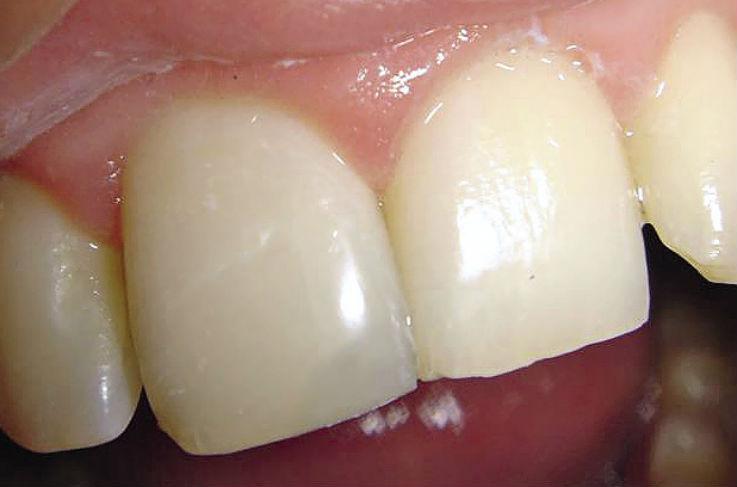 Рис. 1. Прозрачность пломбы, установленной на 11 зуб, превышает светопроницаемость твердых тканей зуба.