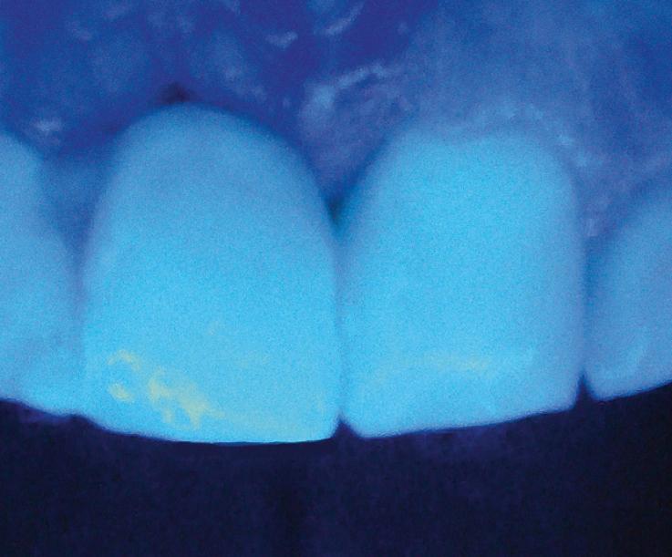 Рис. 20. При освещении резцов коротковолновым светом выполненная конструкция флуоресцирует подобно твердым тканям соседних зубов.