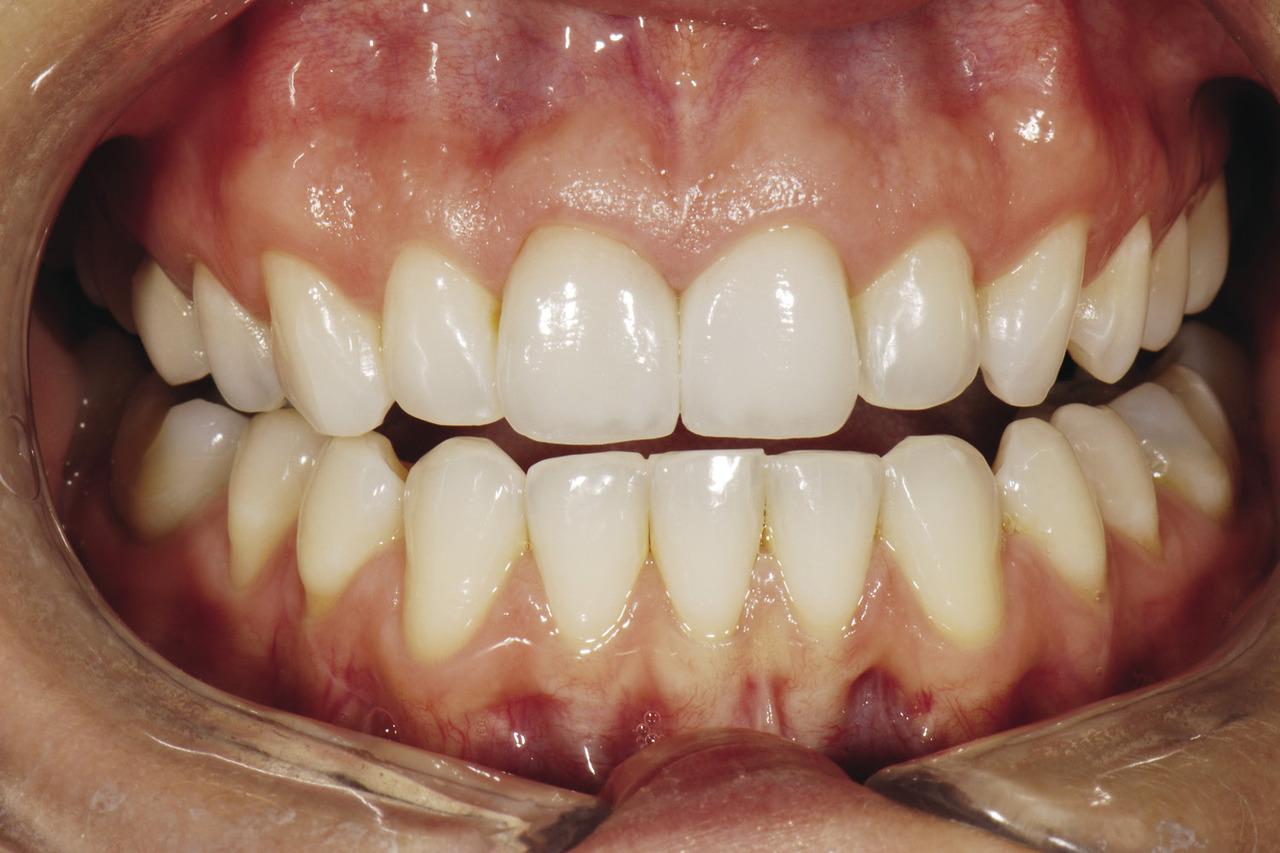 Рис. 21. Вид с ретрактором: виниры пациентки полностью маскируют изменение цвета ее естественных зубов.