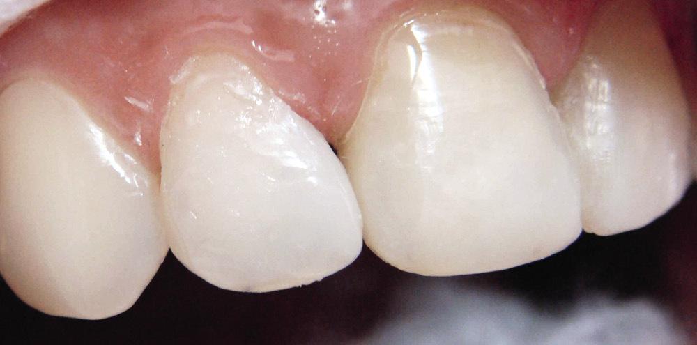 Рис. 22а. При пломбировании латеральных резцов изменяют их размеры и положение в зубной дуге: реставрация правого резца.