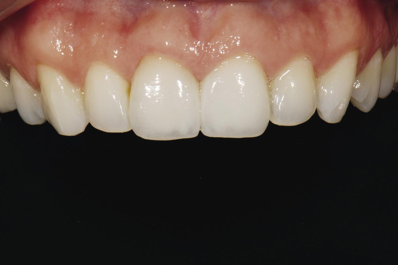 Рис. 22. Закрыв нижнюю часть рта пациентки, зубной техник может сконцентрироваться на припасовке, контурах, форме и размере верхних передних зубов.