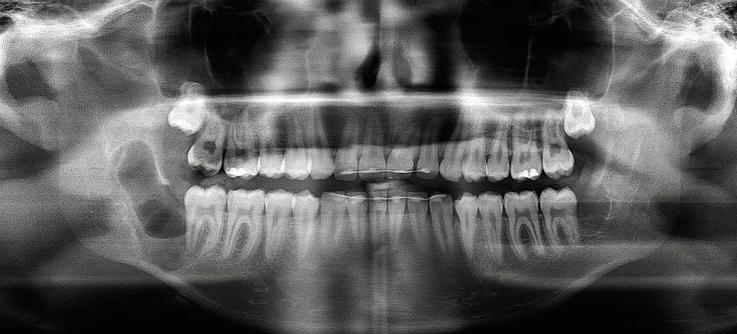 Рис. 2. Послеоперационная контрольная рентгенограмма: состояние после оперативного удаления 48 зуба мудрости, энуклеации тканей кисты в области 48 зуба и кюретажа образовавшейся костной полости.