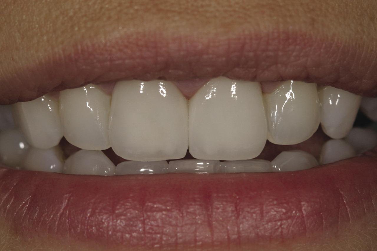 Рис. 23. Окончательный вид реставрации — пациентка счастлива и уверена в своей улыбке.