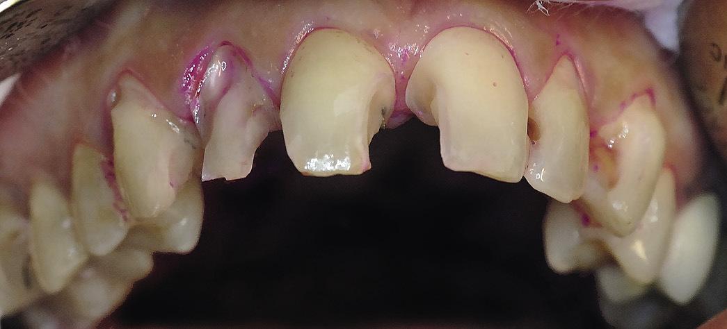 Рис. 2. Зубы 13—23 после препарирования: удалены старые реставрации и инфицированные твердые ткани.