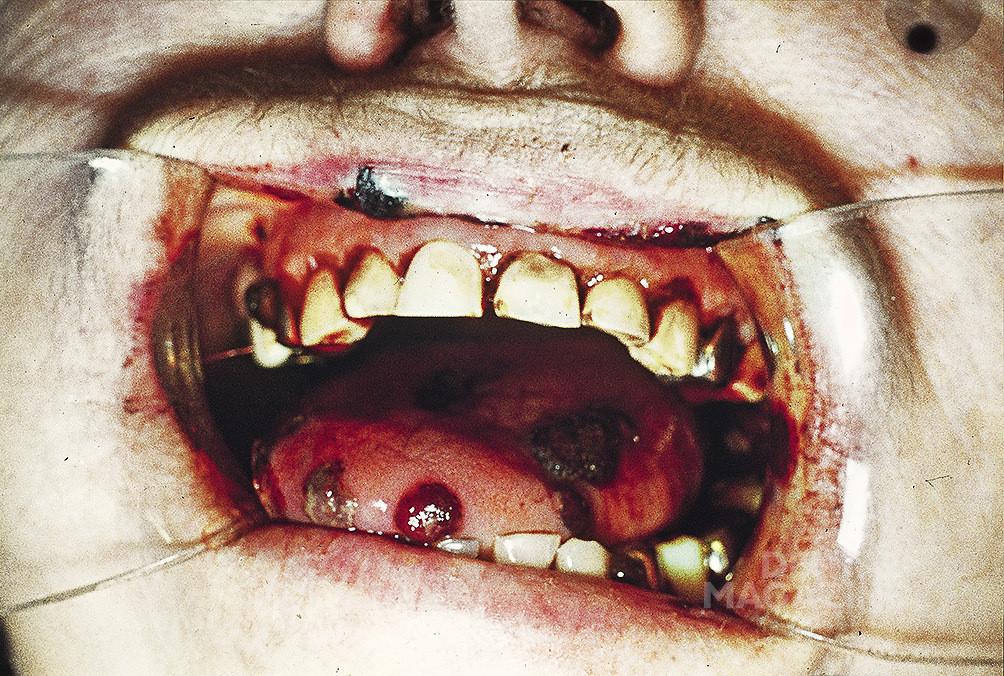 Рис. 2. Фотографии из гематологического банка, сделанные при помощи камеры «Зенит 3М», из личного фотоархива профессора А. М. Аванесова.