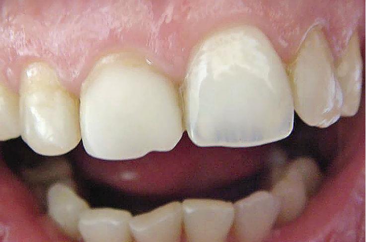 Рис. 2. Оптические свойства винира правого верхнего резца в области режущего края не соответствуют симметричному зубу.
