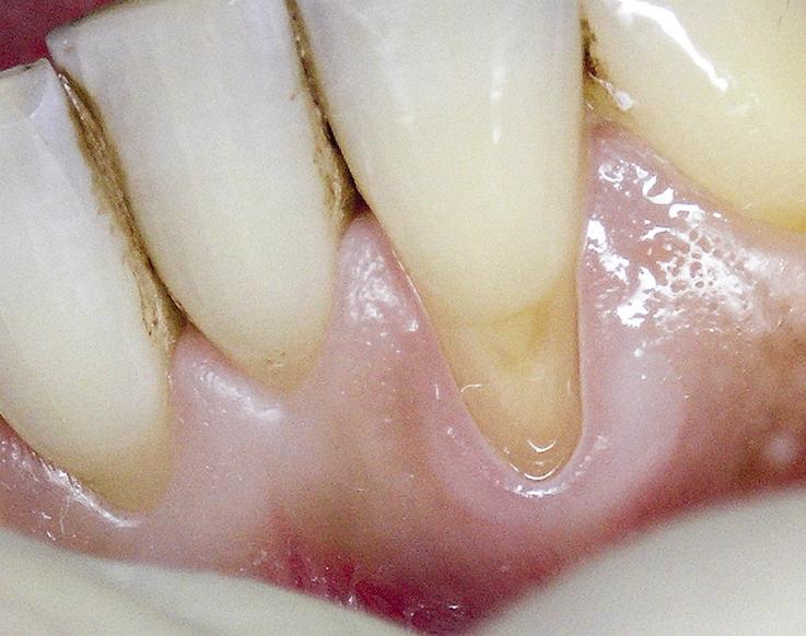 Рис. 3. Зуб 3.2 после препарирования.