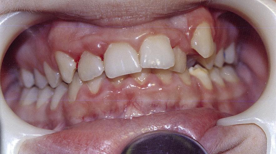 Рис. 3. Выраженная скученность зубов.