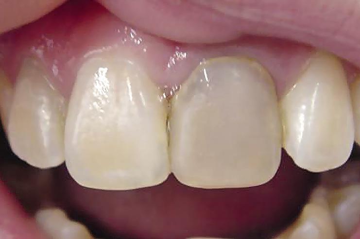 Рис. 3. Винирное покрытие в области 21 зуба пропускает отраженные от депульпированного центрального резца лучи света, вследствие чего зуб воспринимается темным.