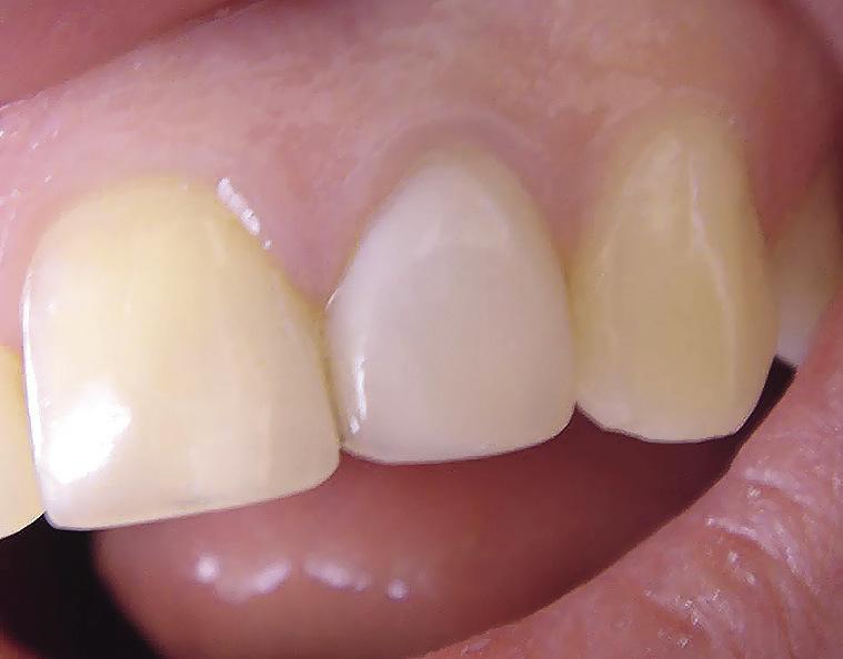 Рис. 4. Эстетическая реставрация 22 зуба имеет иной цветовой оттенок, чем рядом стоящие зубы.