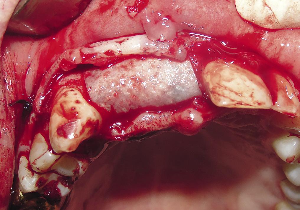 Рис. 5. Пациент М. Закрытие костной раны коллагеновой мембраной.