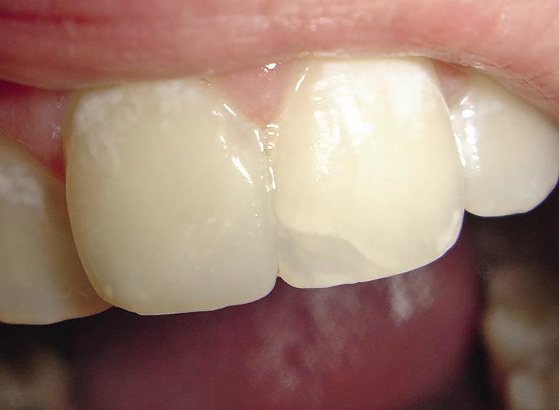 Рис. 5. Поверхностный скос 21 зуба выделяет границу пломба — зуб.