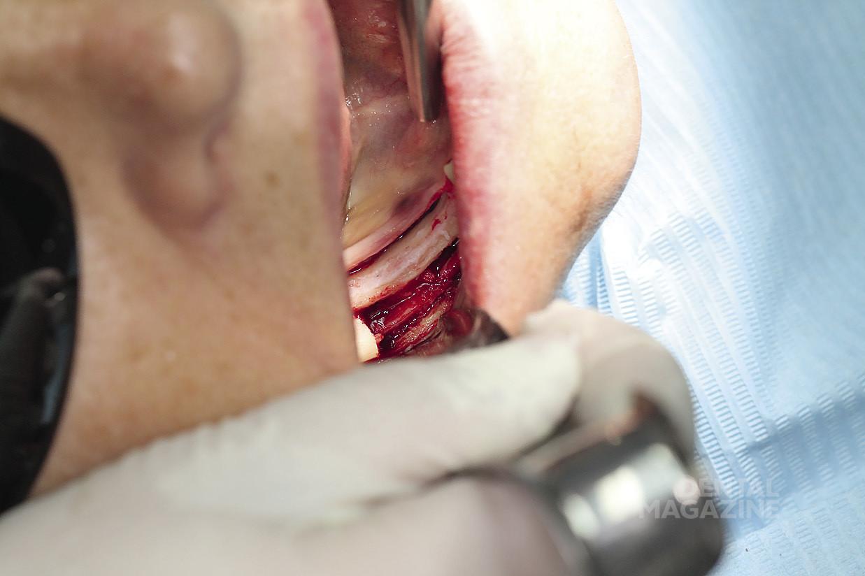 Рис. 6. Выделение нижнего альвеолярного нерва.