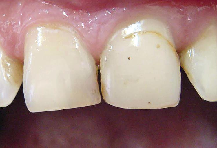 Рис. 6. Пигментированные поры и граница пломба — зуб выделяют реставрацию из зубного ряда.