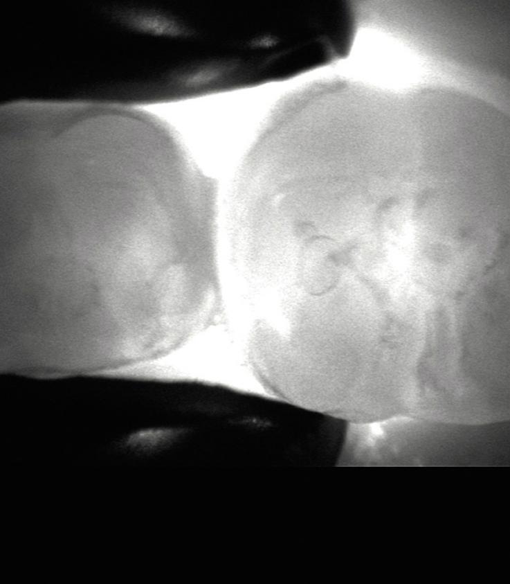 Рис. 7. Патологический процесс на молочном моляре при исследовании Дагнокам.