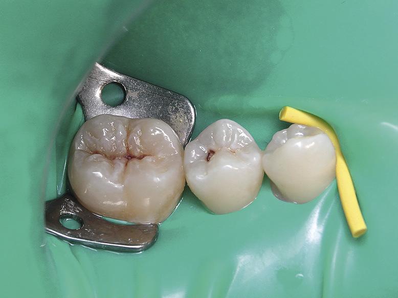 Рис. 1. Зуб 3.5: кариес дентина.