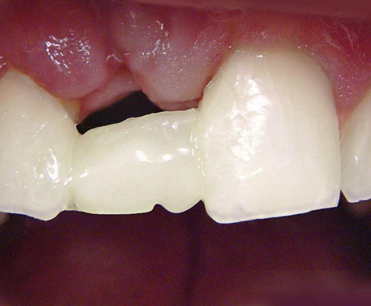 Рис. 8. Смоделирован мамелон 11 зуба.
