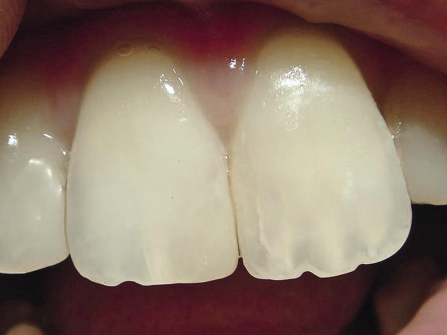 Рис. 8. В реставрации правого центрального резца воссозданные мамелоны отличаются от мамелонов симметричного зуба. Форма режущего края 11 резца не соответствует симметричному зубу.