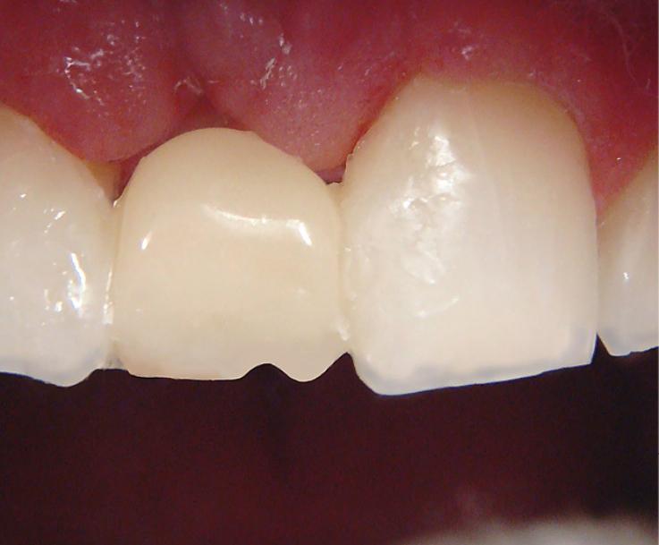 Рис. 9. Из опака сформирована основа искусственного зуба.
