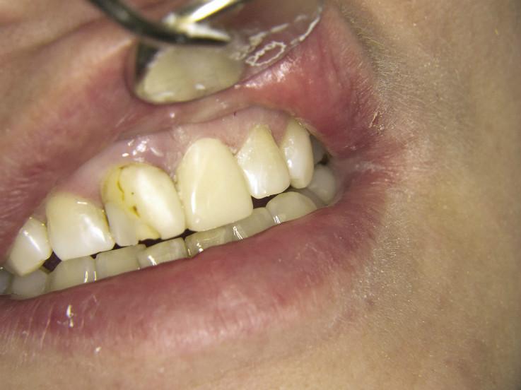 Рис. 9. Зубы 2.1 и 2.2 после реставрации композиционным материалом «Амарис».