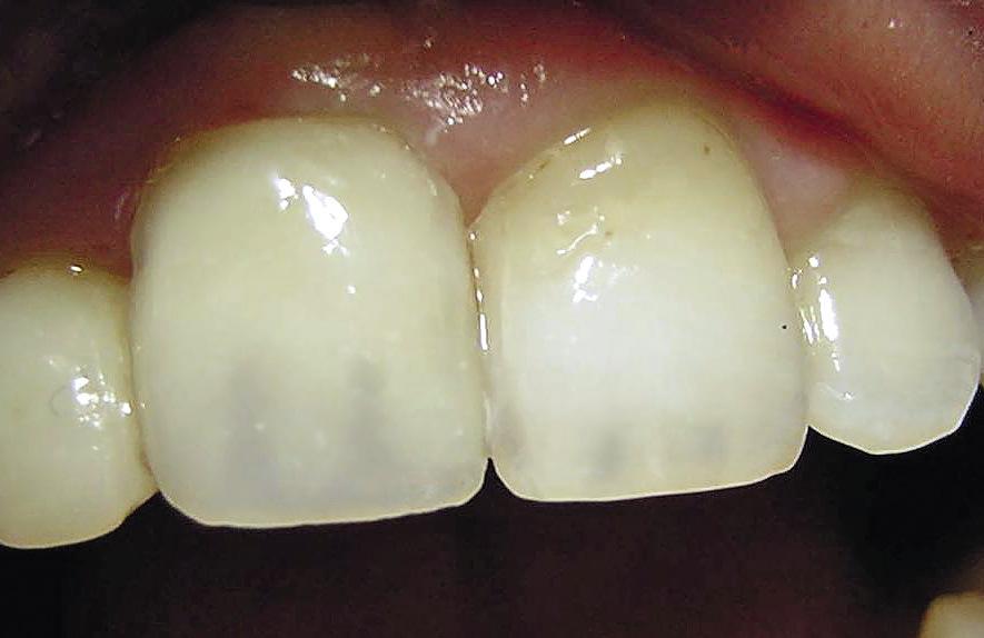 Рис. 9. Участки прозрачных зон между мамелонами в реставрации на 11 зубе выше, чем у соседнего здорового зуба.
