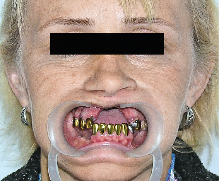 Рис. 1. Дефект тела и альвеолярного отростка правой и левой верхних челюстей.