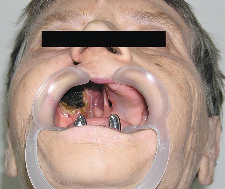 Рис. 4. Отсутствие правой верхней челюсти.