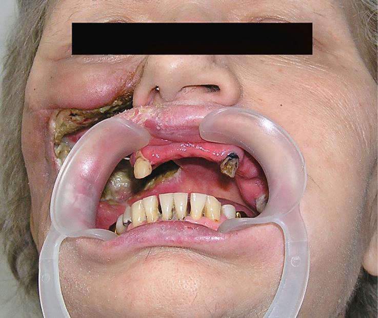 Рис. 5. Правосторонний дефект тела, альвеолярного, небного и скулового отростков верхней челюсти, мягких тканей подглазничной, щечной и скуловой областей.
