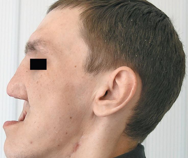 Рис. 6. Отсутствие правой и левой верхних челюстей.