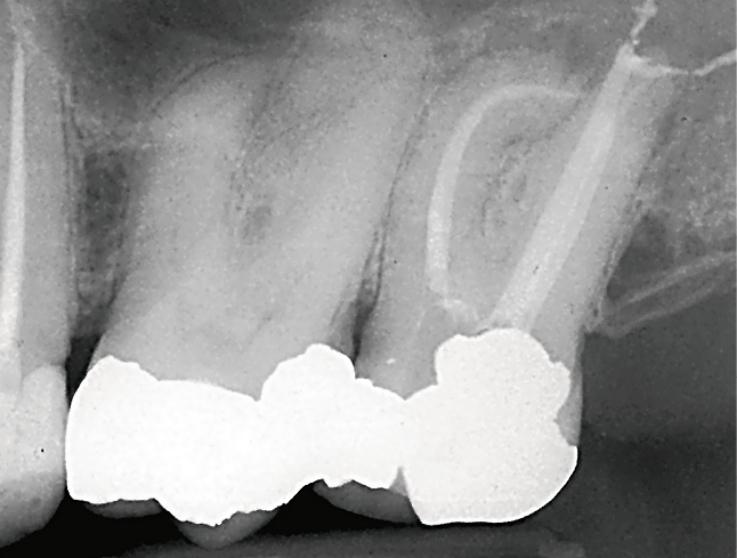 Рис. 5б. Зуб 27, рентгенограмма, демонстрирующая плавную апикальную кривизну.