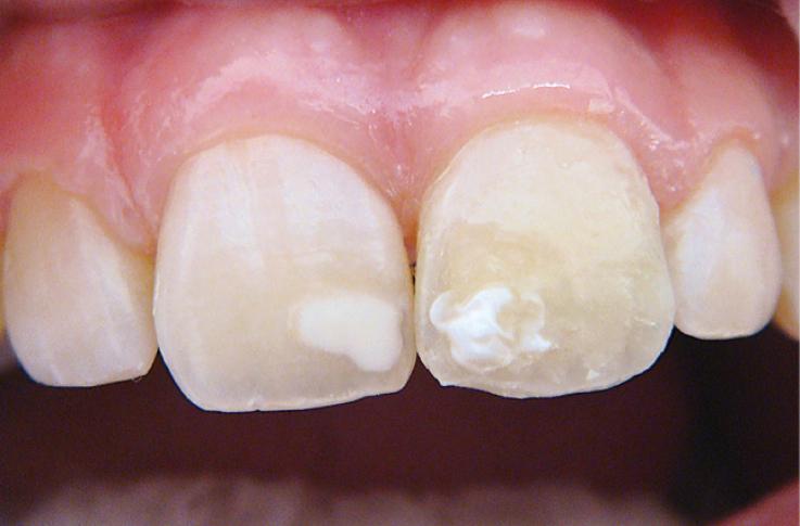 Рис. 15. Воспроизведено белое пятно гипоплазии в области мезиального угла.