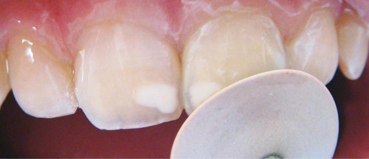 Рис. 16. Полировочным диском проводится обработка поверхности реставрации до появления естественного блеска.