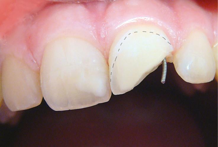 Рис. 6. Протравленная поверхность эмали и дентина.