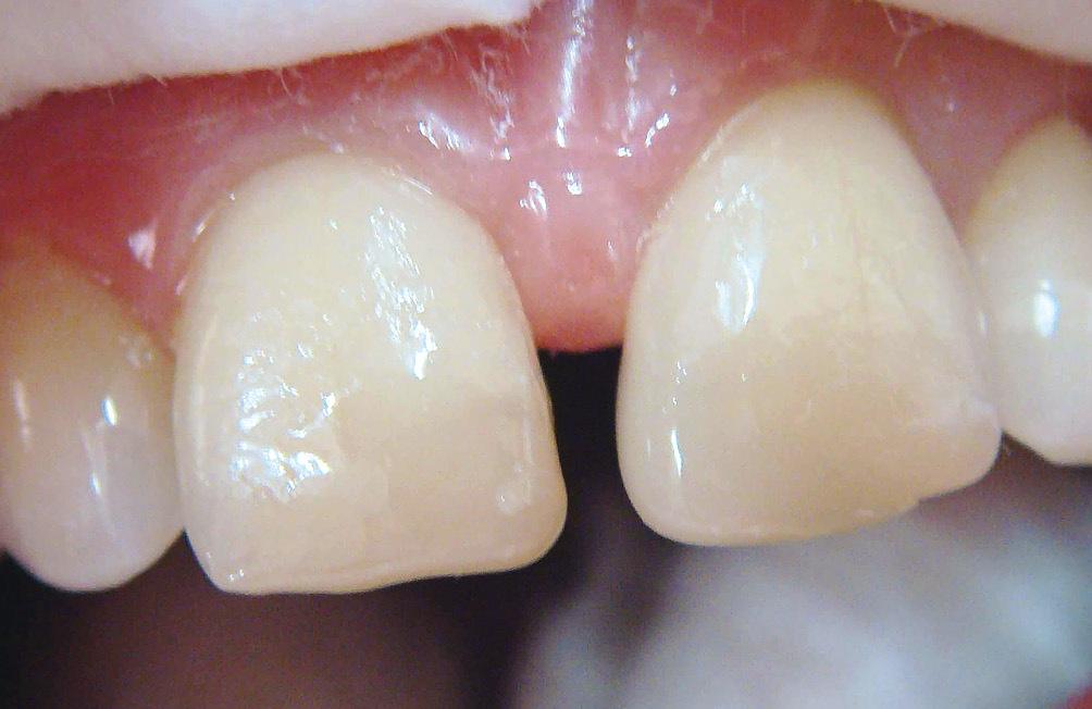 Рис. 10. Моделирование симметричного зуба.
