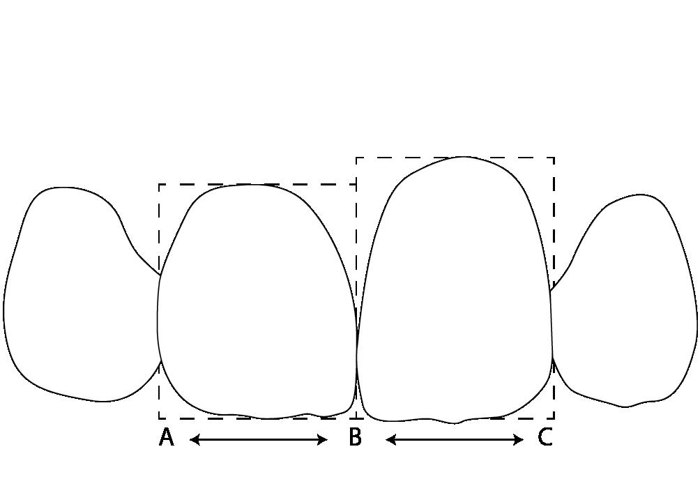 Рис. 2а. Влияние формы зубов на восприятие их размеров.