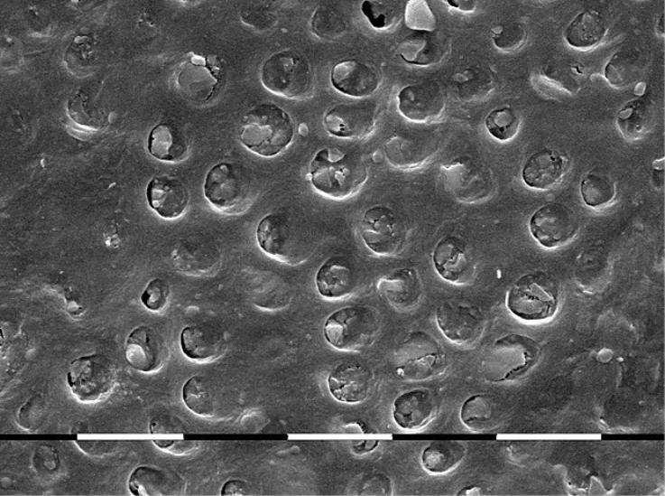 Рис. 2. Поверхность, обработанная графитом и диодным лазером. Показано закрытие дентинных канальцев за счет заполнения их аморфным веществом. СЭМ-изображение. Увеличение X 2000.