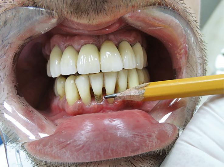 Рис. 5. Покрытие мягким графитом поверхности обнаженного дентина.