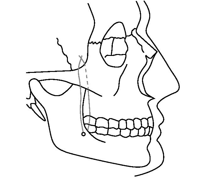 Рис. 1. Концы капроновой лигатуры проведены через канал в передней поверхности ветви нижней челюсти и связаны в области угла, образованного височным и лобным отростками скуловой кости.