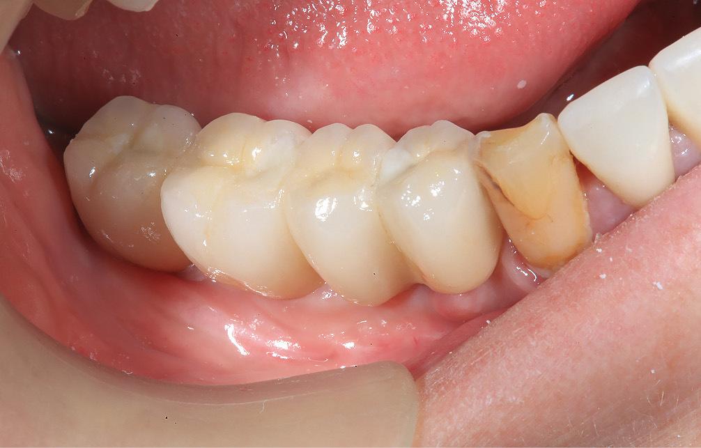 Рис. 16. Коронки установлены в полости рта.
