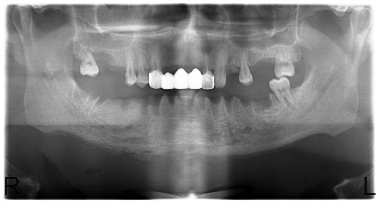 Рис. 8. Больной У., 28 лет. Диффузный остеонекроз тела нижней челюсти без зоны демаркации (апрель 2010).