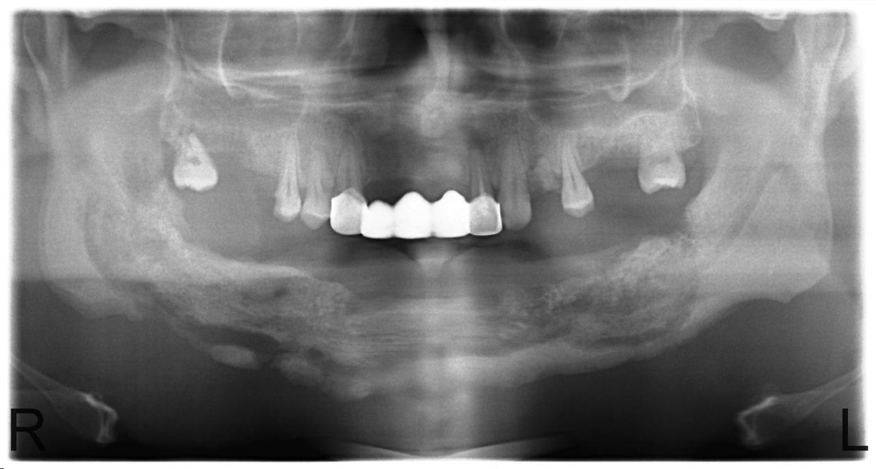 Рис. 9. Больной У. Секвестрация тела нижней челюсти с выраженной зоной демаркации и сформированным секвестром (июнь 2010).