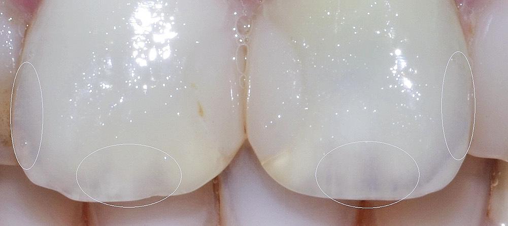 Рис. 9. Пример зоны абсорбции на естественных зубах.