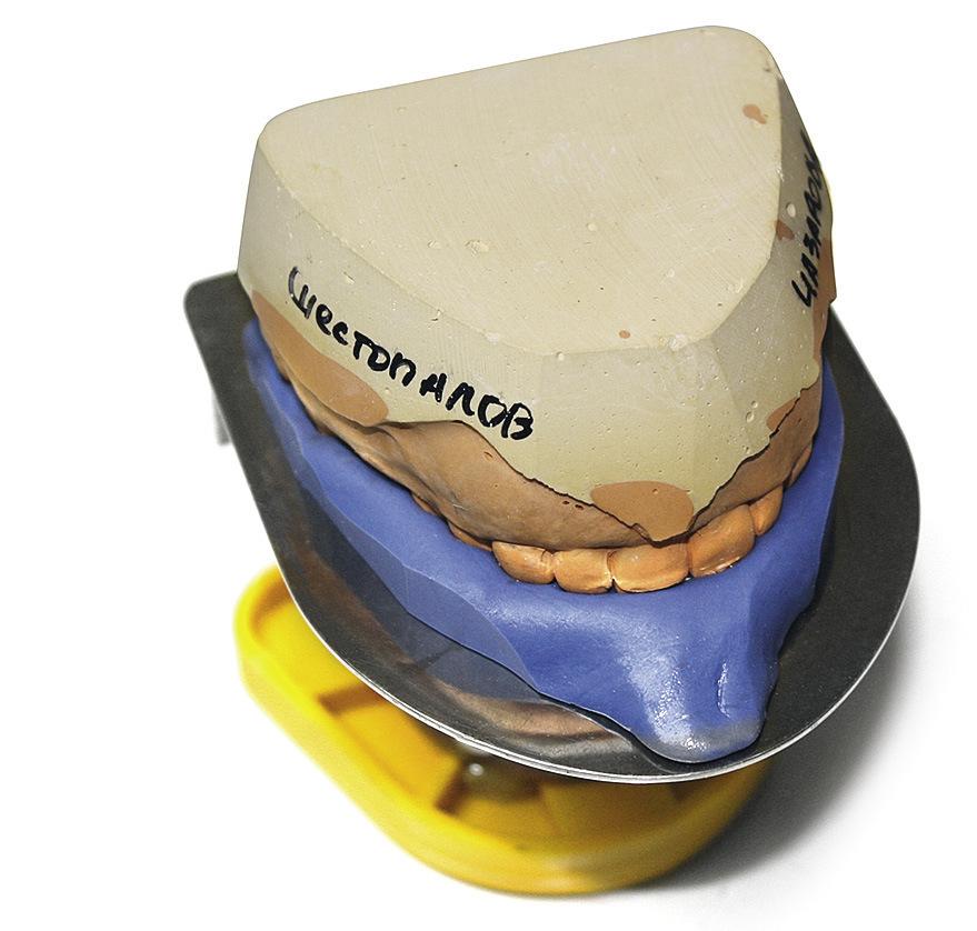 Рис. 11. Модель верхней челюсти устанавливается на регистрат.