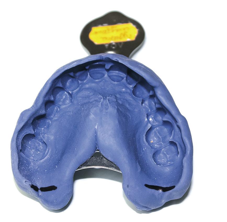 Рис. 1. Оттиск зубного ряда верхней челюсти с крылочелюстными выемками.