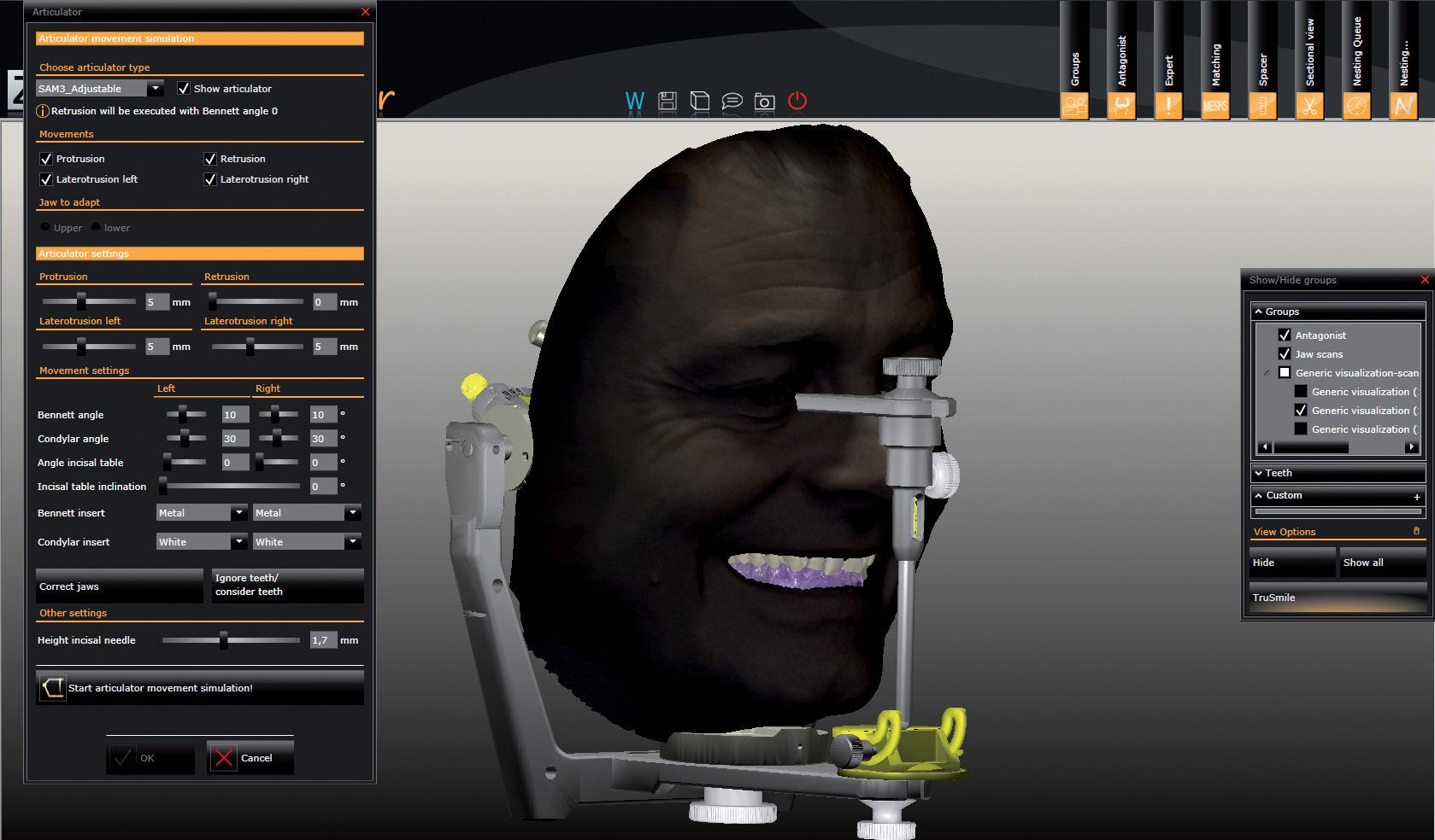 Рис. 1. Совмещение скан-данных с Face Hunter с моделью в виртуальном артикуляторе.