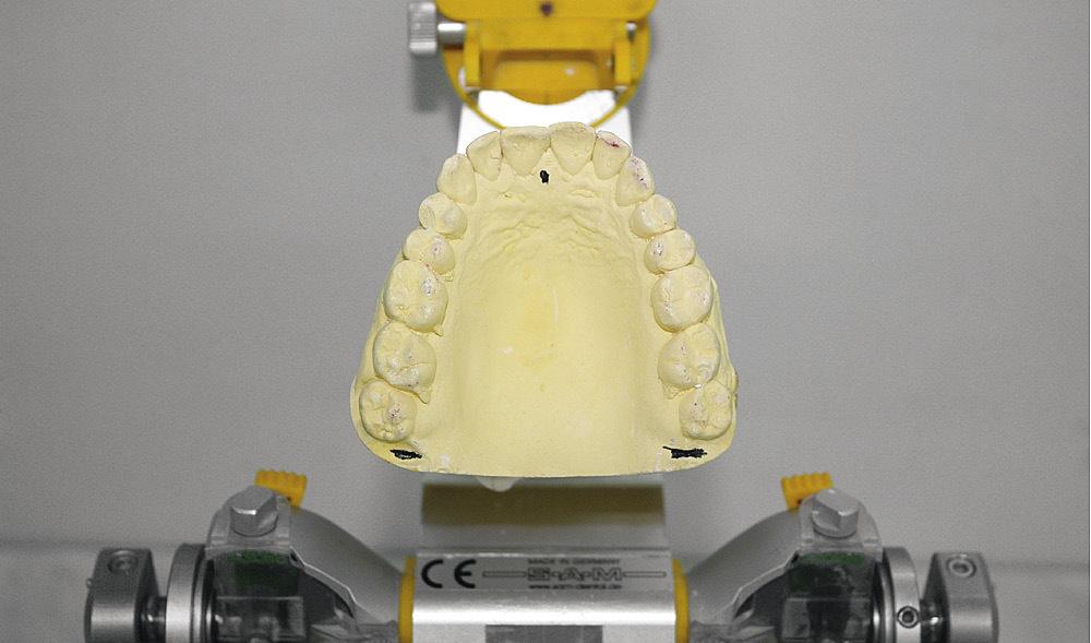 Рис. 2. Гипсовая модель челюсти.