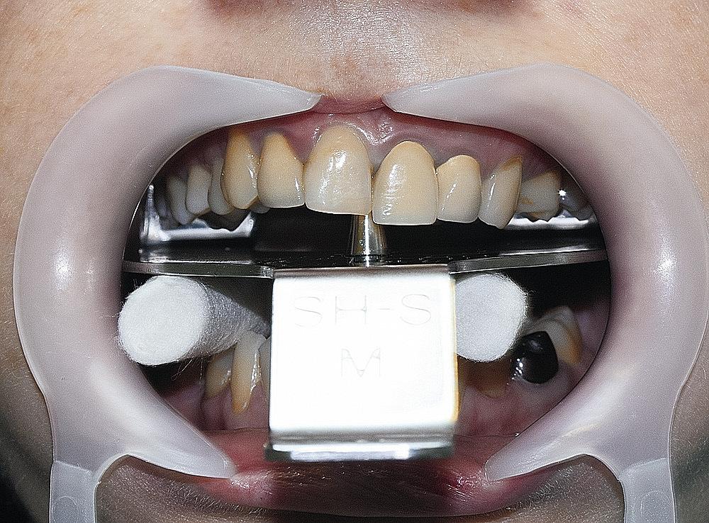 Рис. 5. Анализ положения окклюзионной плоскости верхнего зубного ряда.